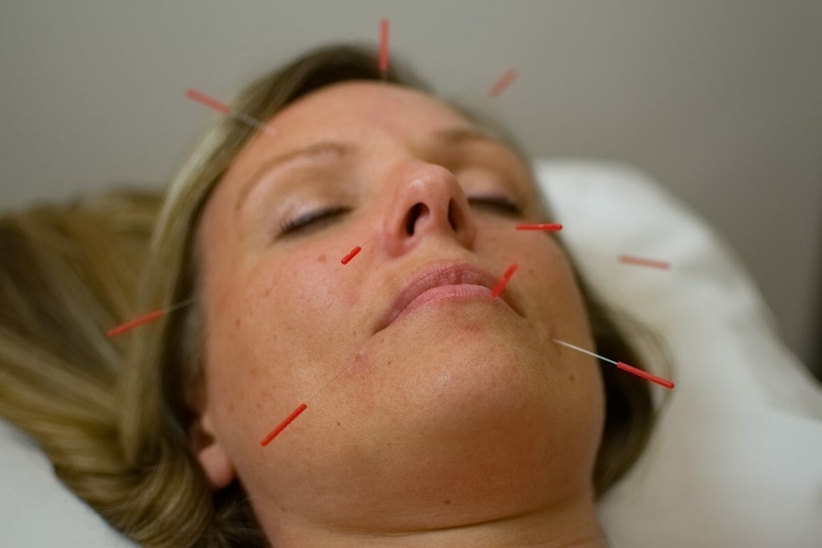 anti aging and acupuncture